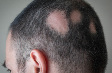 hair loss treatment in islamabad
