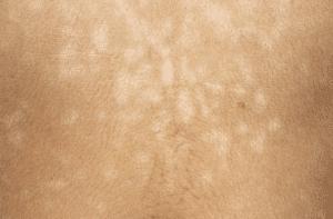 Pityriasis versiclor