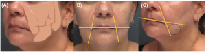 Fat Dissolving injection for face