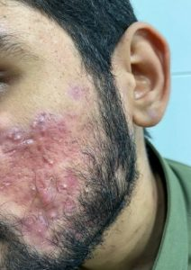 Acne on face treated