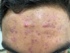 Acne treatment of face