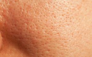 open pores on skin